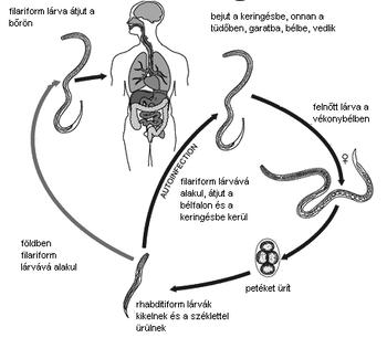 Ascaris kezelése a tüdőben, Az orsóférgesség okai, tünetei és kezelése